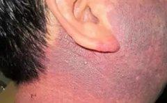 南京维多利亚医院:鲜红斑痣治疗有哪些注意点