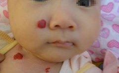 南京胎记医院分析草莓状血管瘤的特点