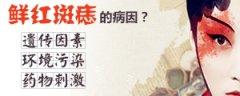 南京维多利亚研究院:鲜红斑痣的病因有哪些