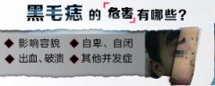 南京维多利亚研究院:黑毛痣的特征是什么