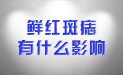 南京治疗胎记的医院?鲜红斑痣的影响在哪些方面