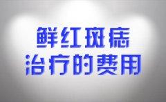 南京胎记医院唯维多利亚?鲜红斑痣的治疗费用是多少