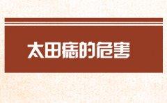 南京去除胎记医院哪家好?太田痣的危害是什么呢