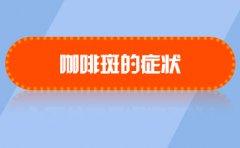 南京去除胎记医院哪家好?咖啡斑的症状是什么呢